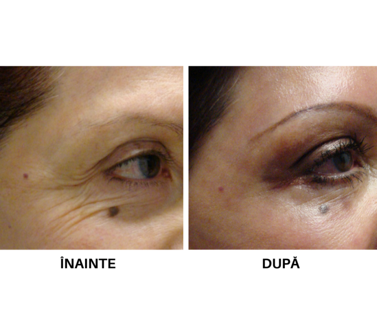 Rejuvenare faciala_laser CO2 (2)