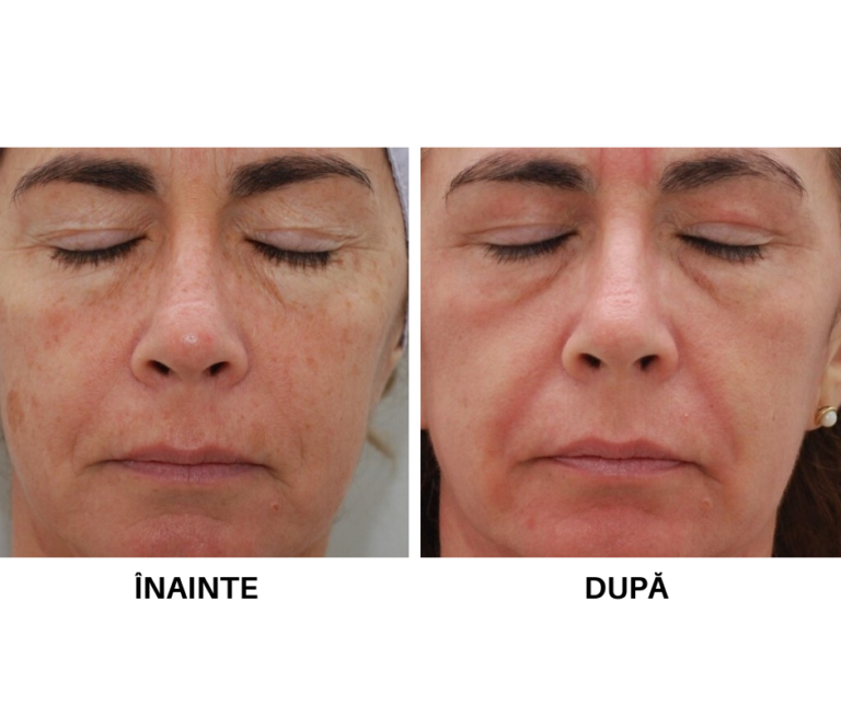 Rejuvenare faciala_laser CO2 (3)