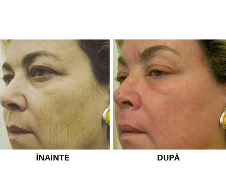 Rejuvenare faciala_laser CO2