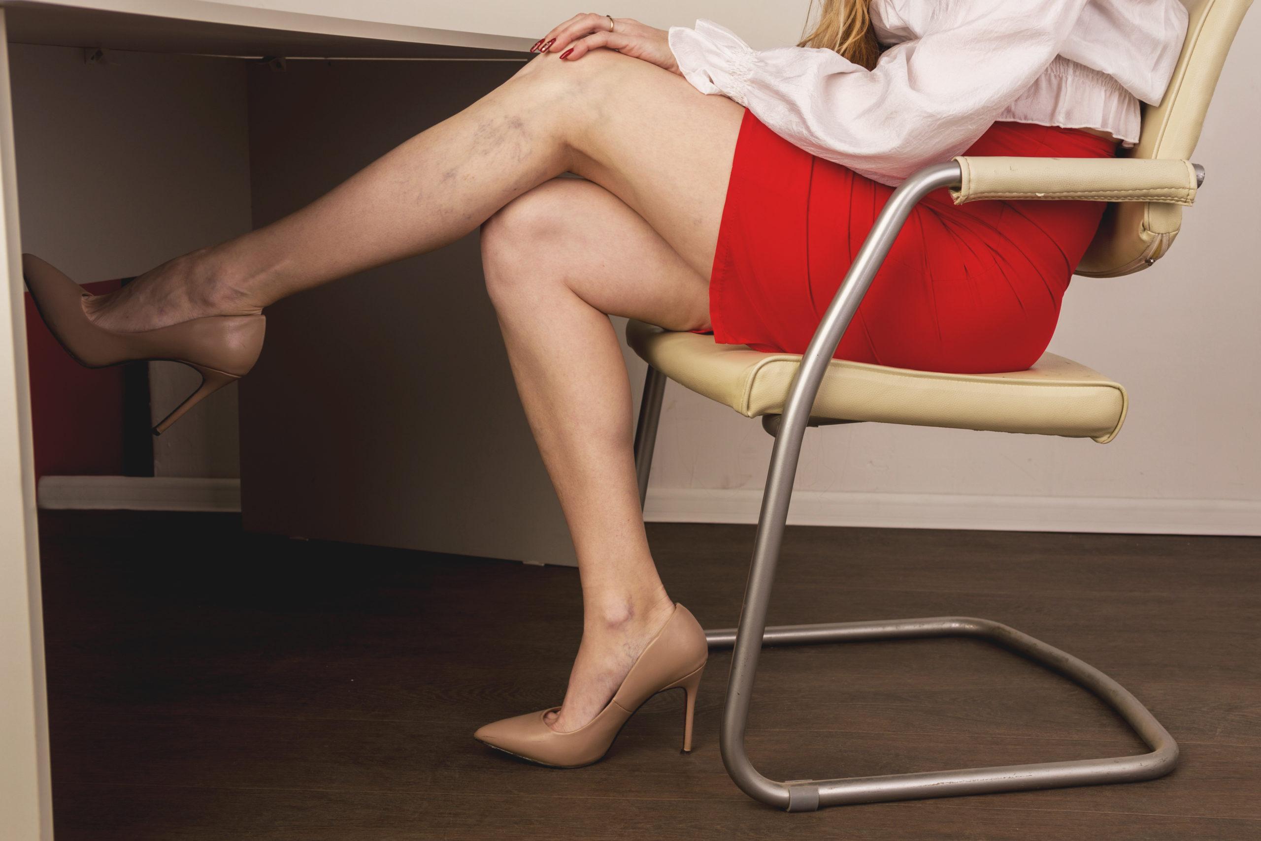 tratament laser vascular